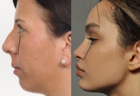 Как меняется лицо после коррекции дефектов прикуса брекетами
